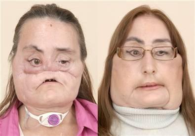 http://jazba.files.wordpress.com/2009/05/face-transplant-patient11.jpe?w=300&h=208
